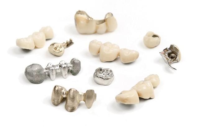 Гарантия на стоматологические услуги: срок защиты прав и нюансы процедуры